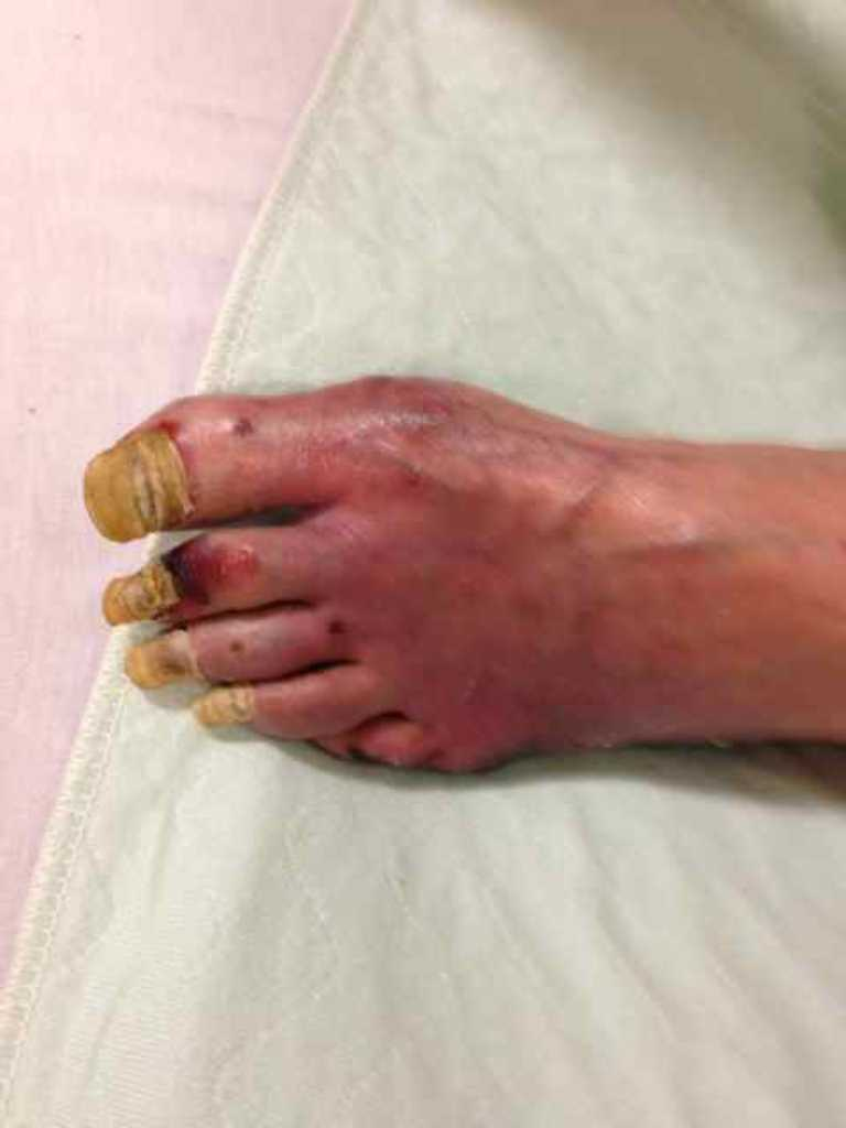 Infection of foot post surgery from leg fracture