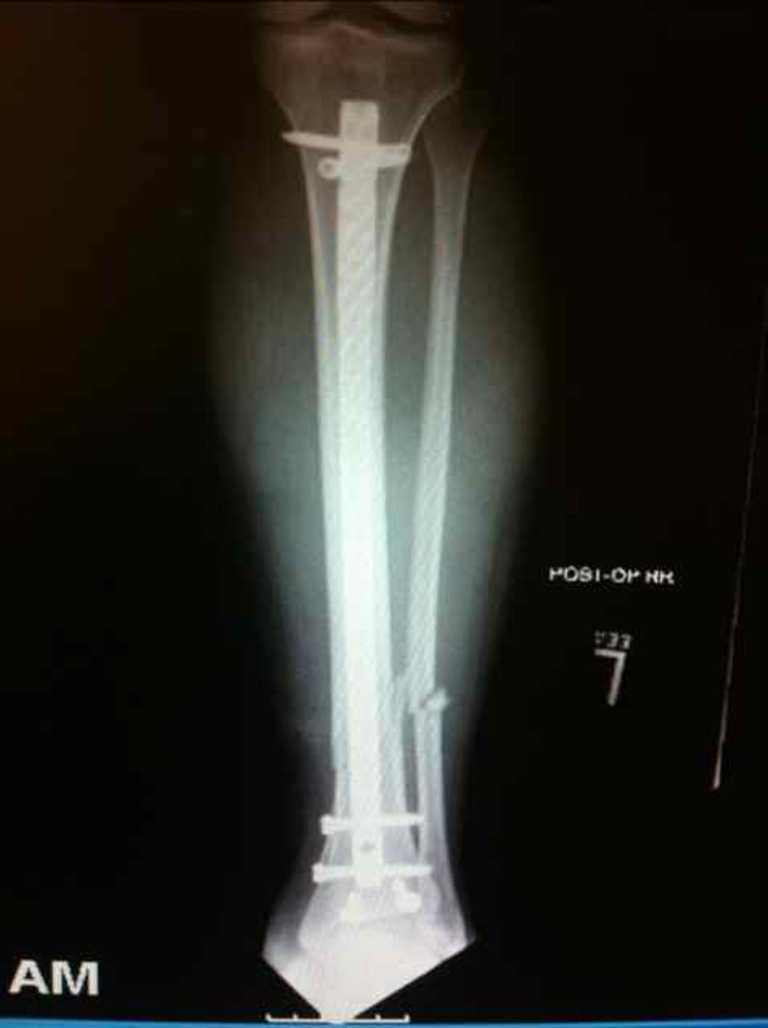 Tibia intramedullary nail on xray