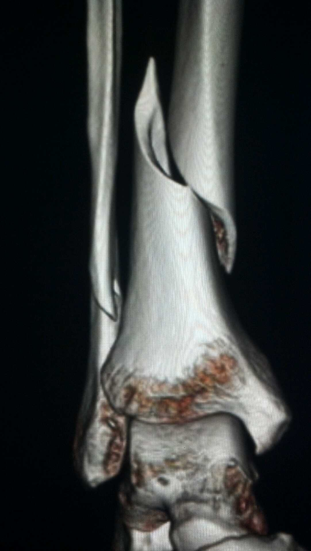 3D imaging reconstruction of a lower leg fracture