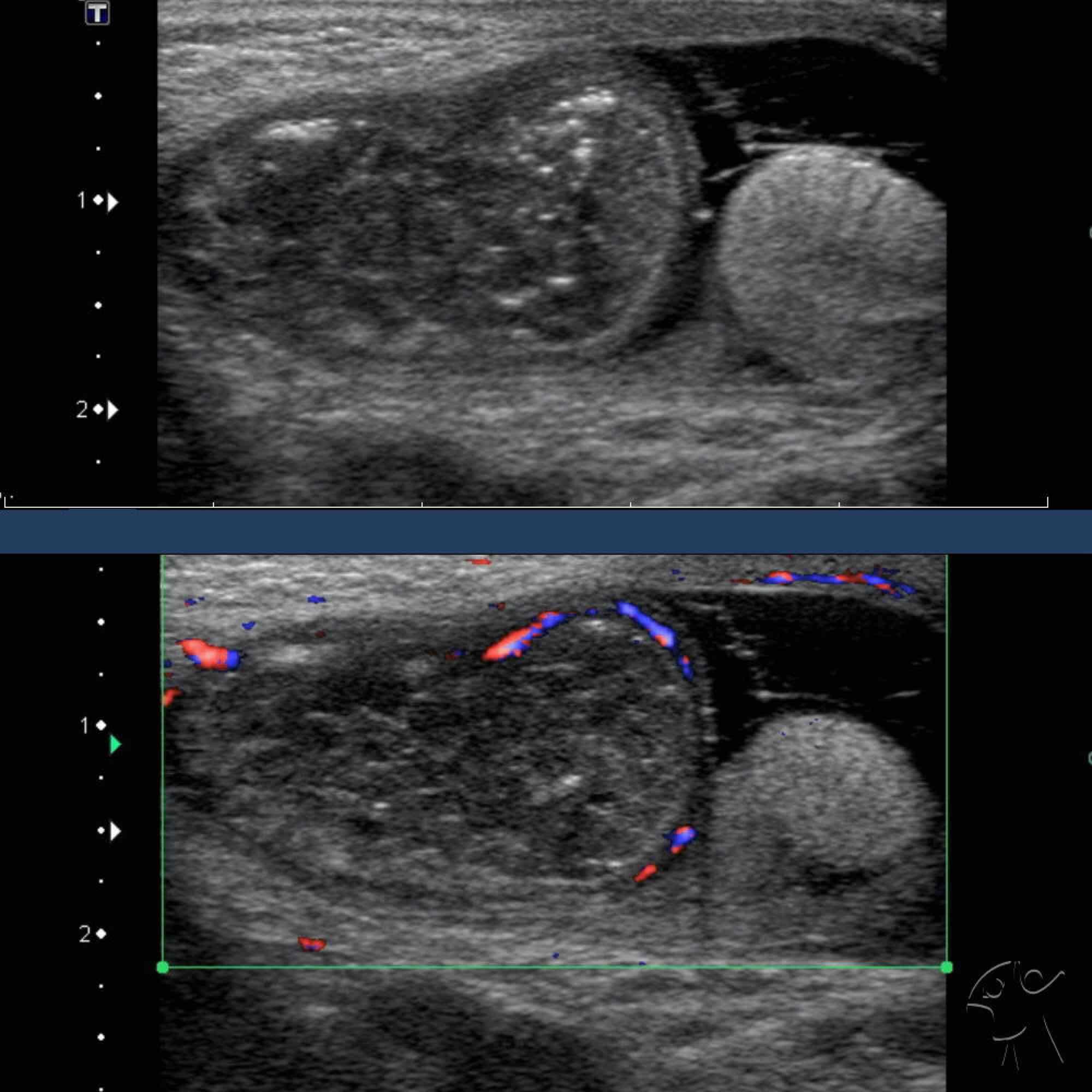 Ultrasound Inguinal Hernia Into Scrotum Causing Testicular