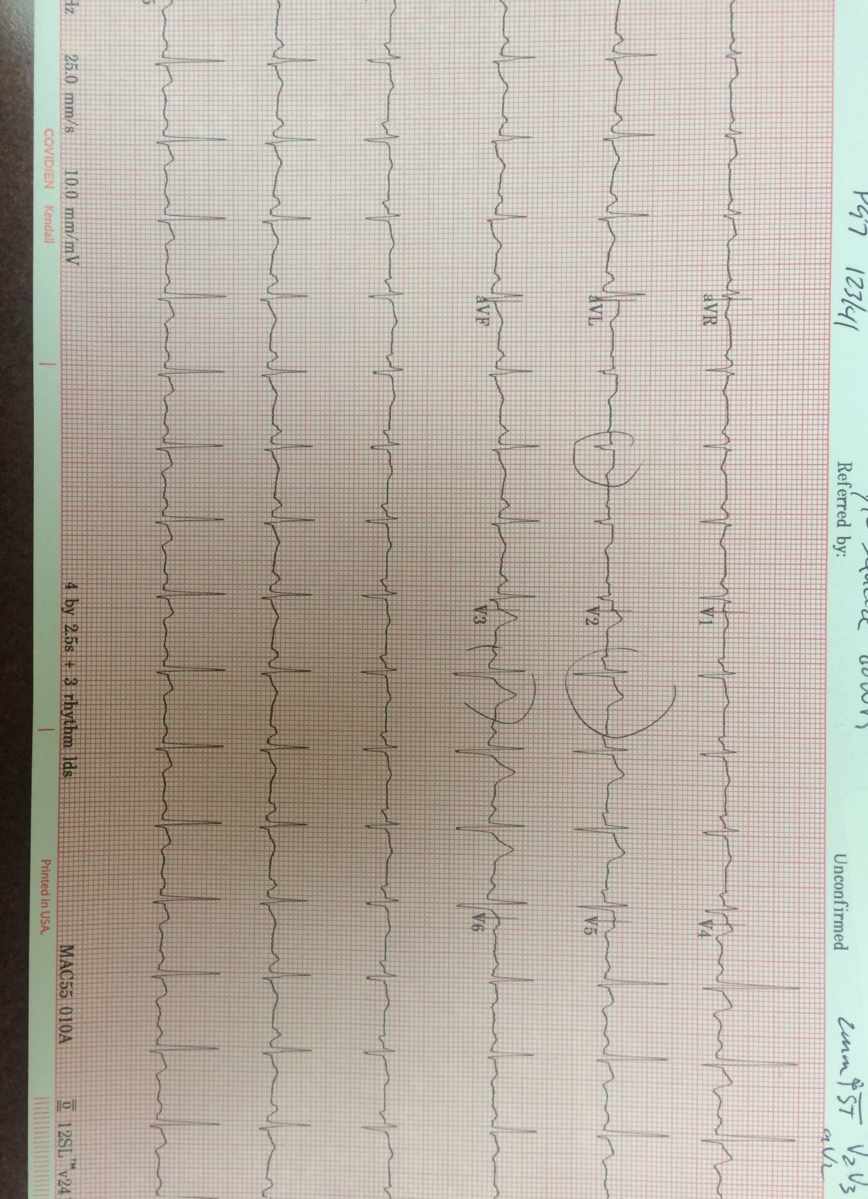 ECG in patient with elevated troponin
