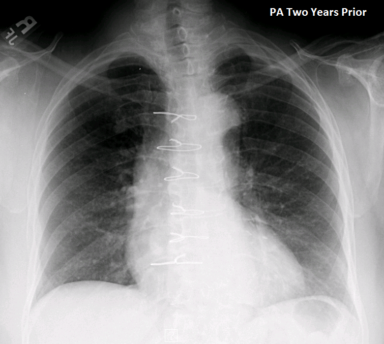Enlarged Right Supraclavicular Lymph Node And Chest X Ray