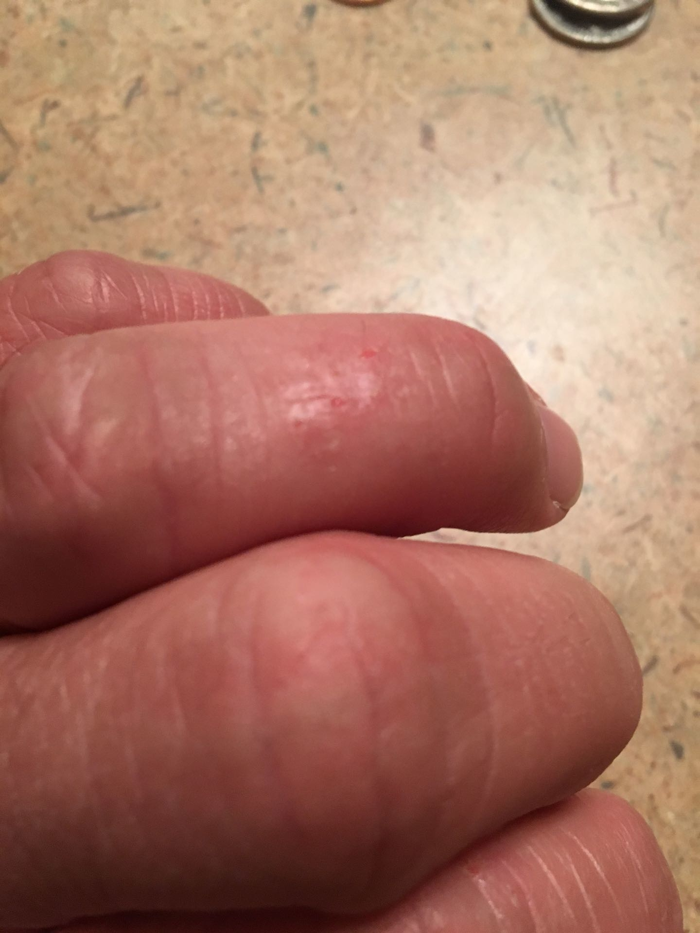 Eczema Pictures On Fingers Atopic Dermatitis Symptoms