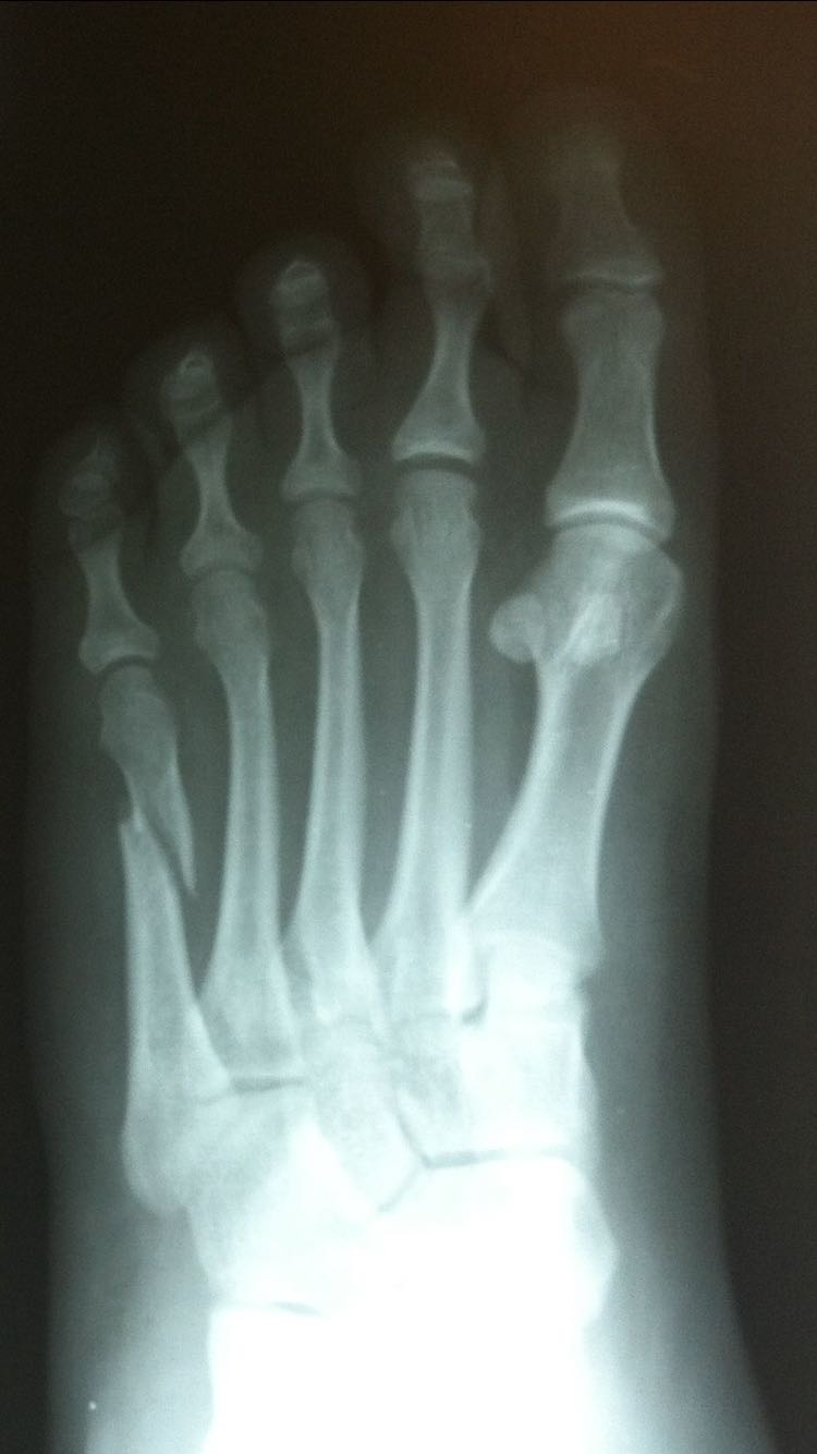 Oblique spiral fracture of 5th toe on X-Ray