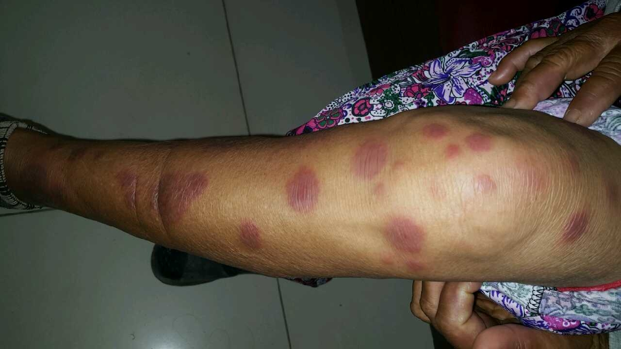 Delineated erythematous patches
