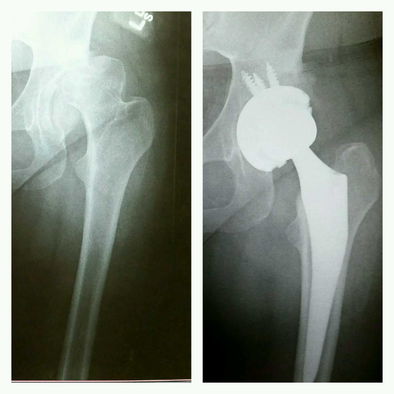 Total Hip Arthroplasty Before And After On X-ray