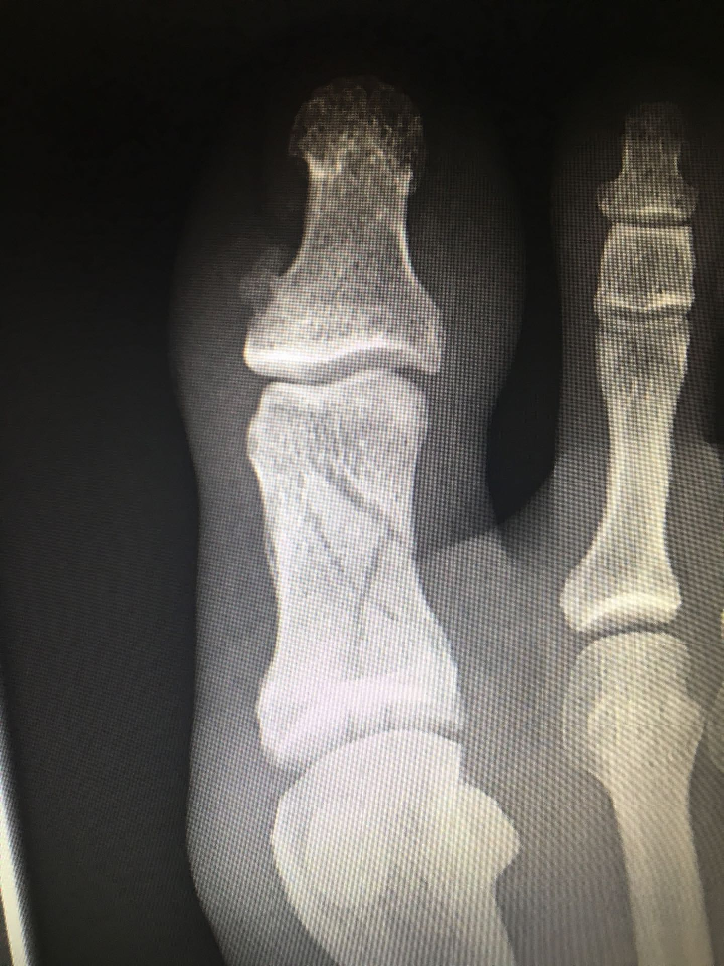 Comminuted Fracture Of The Great Toe On X Ray