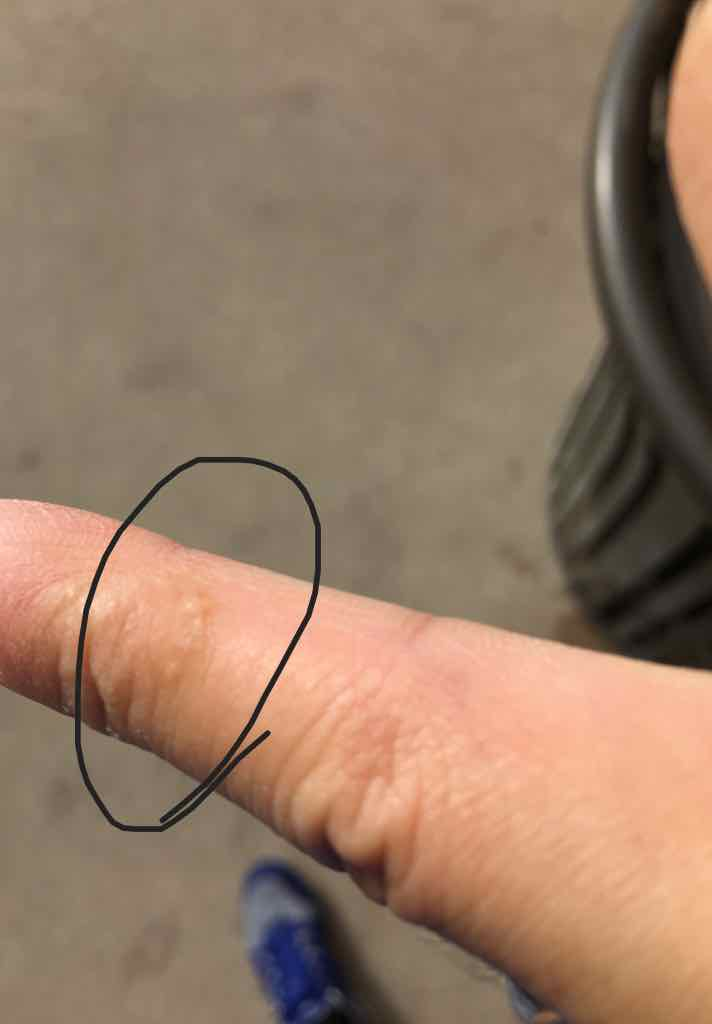 Dyshidrotic eczema on fingers and palms