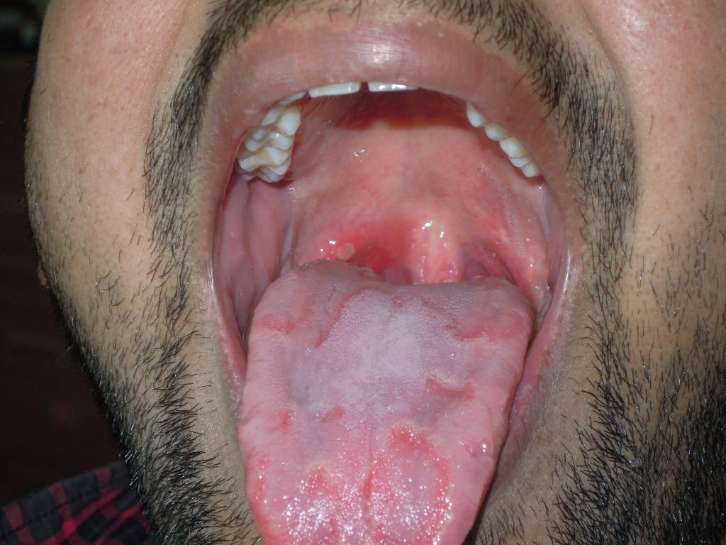 Aphthous ulcer and geographic tongue