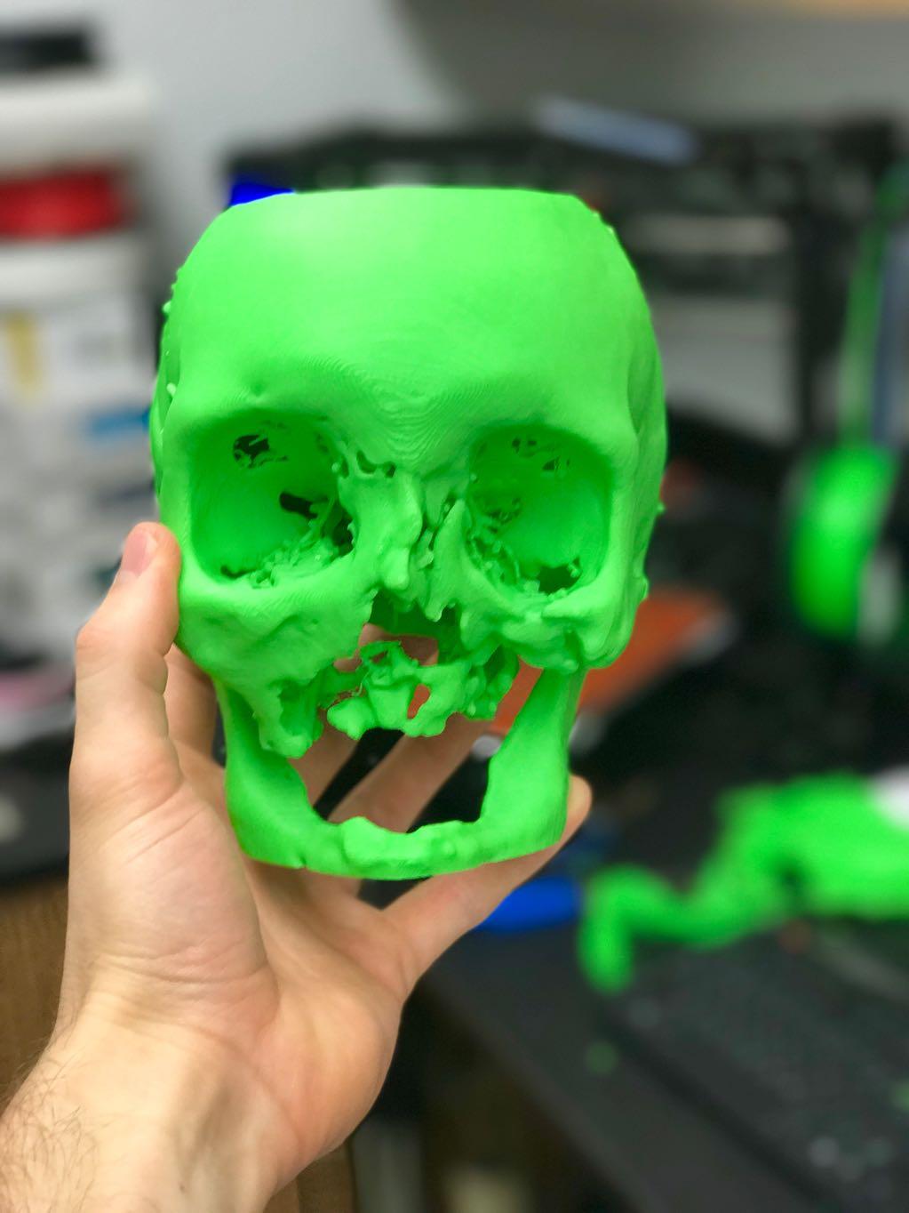 3D print of severe facial trauma