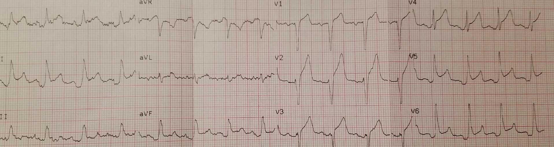 Acute myocardial injury on EKG