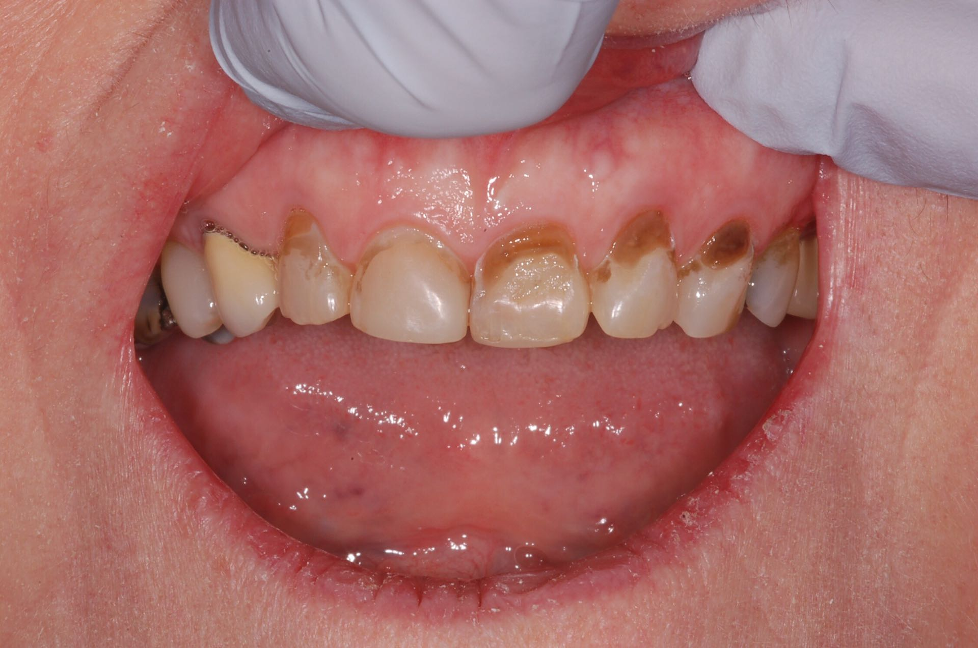 Dental erosion and staining