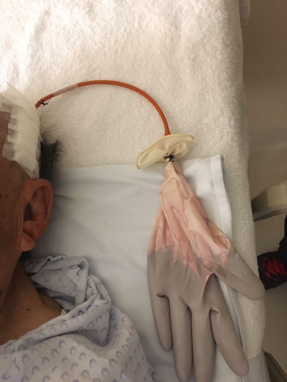 A Nelson catheter alternative for hematoma drainage