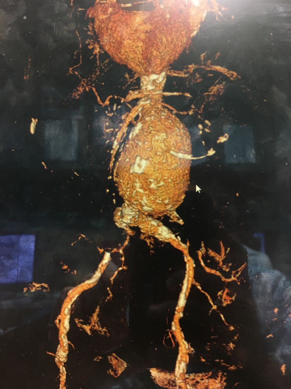 Abdominal aortic aneurysm in angiography