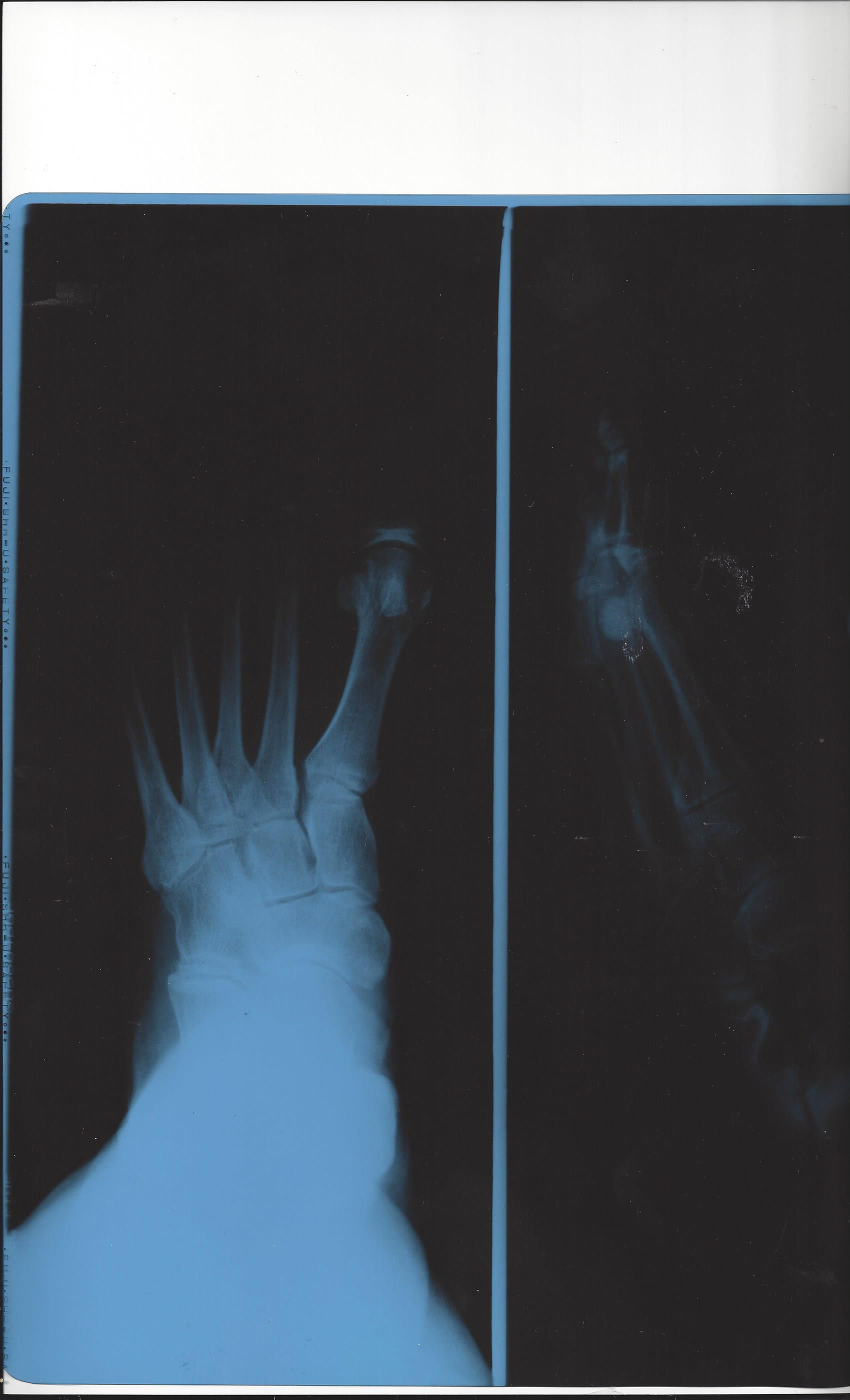 Oblique fracture of right foot on x-ray