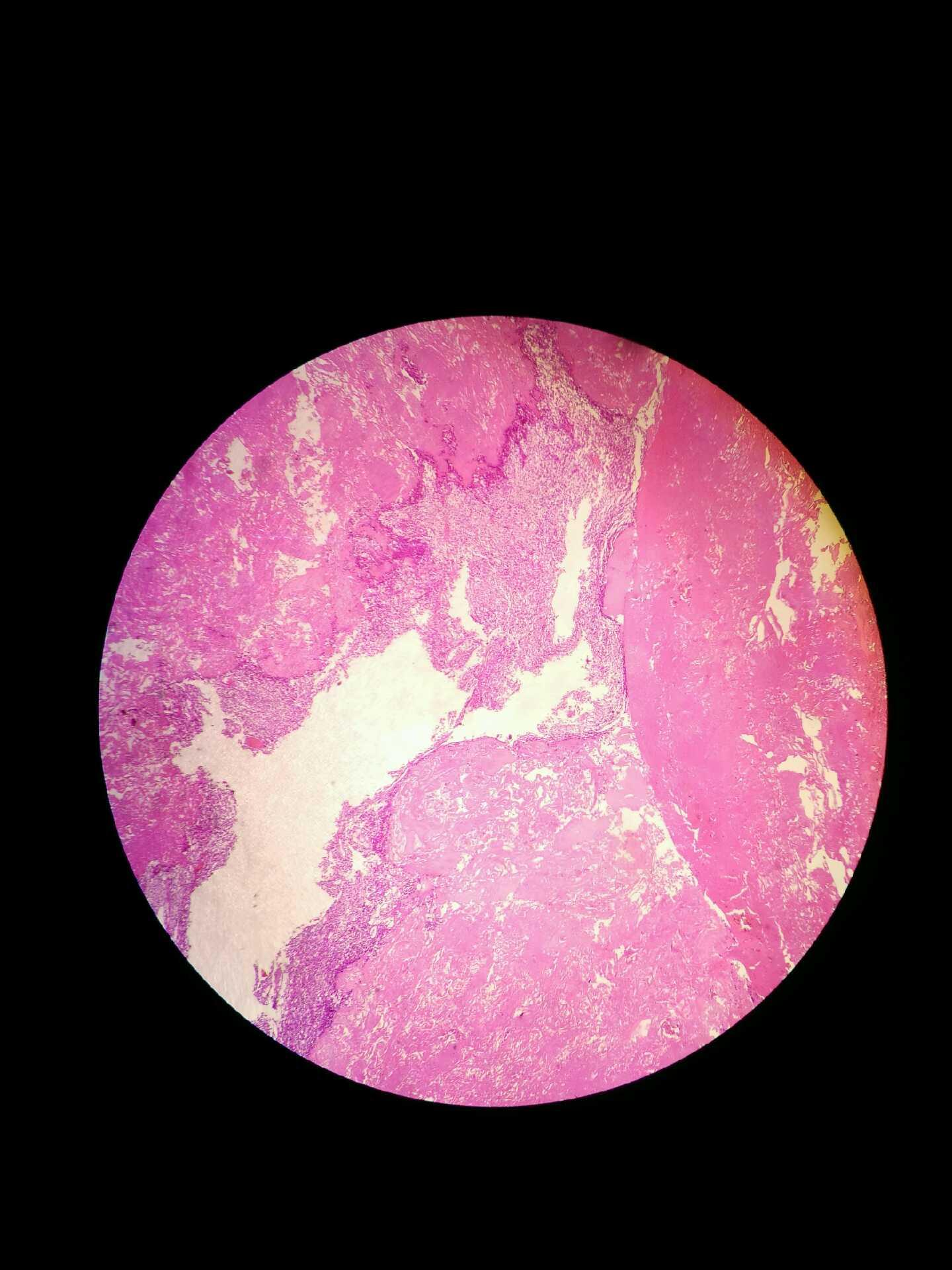 lymphoepithelioma like thymic carcinoma in histopathology