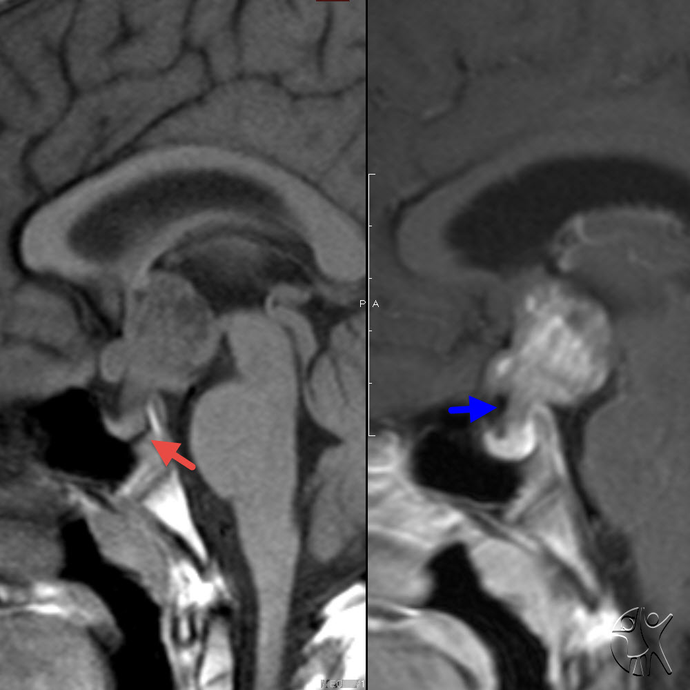 Central nervous system germinomas on MRI