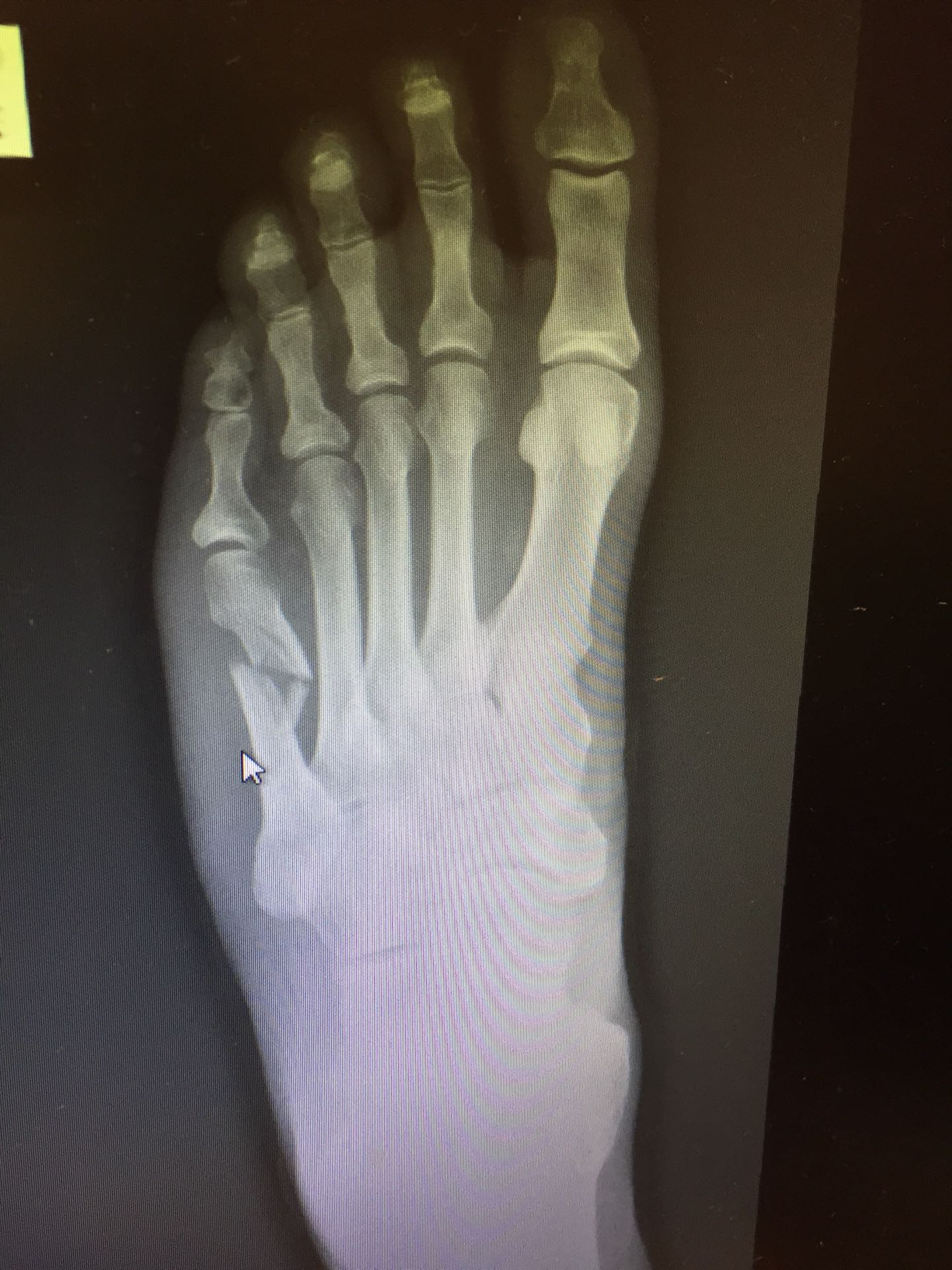 Comminuted Fracture Of Right Fifth Metatarsal On X Ray