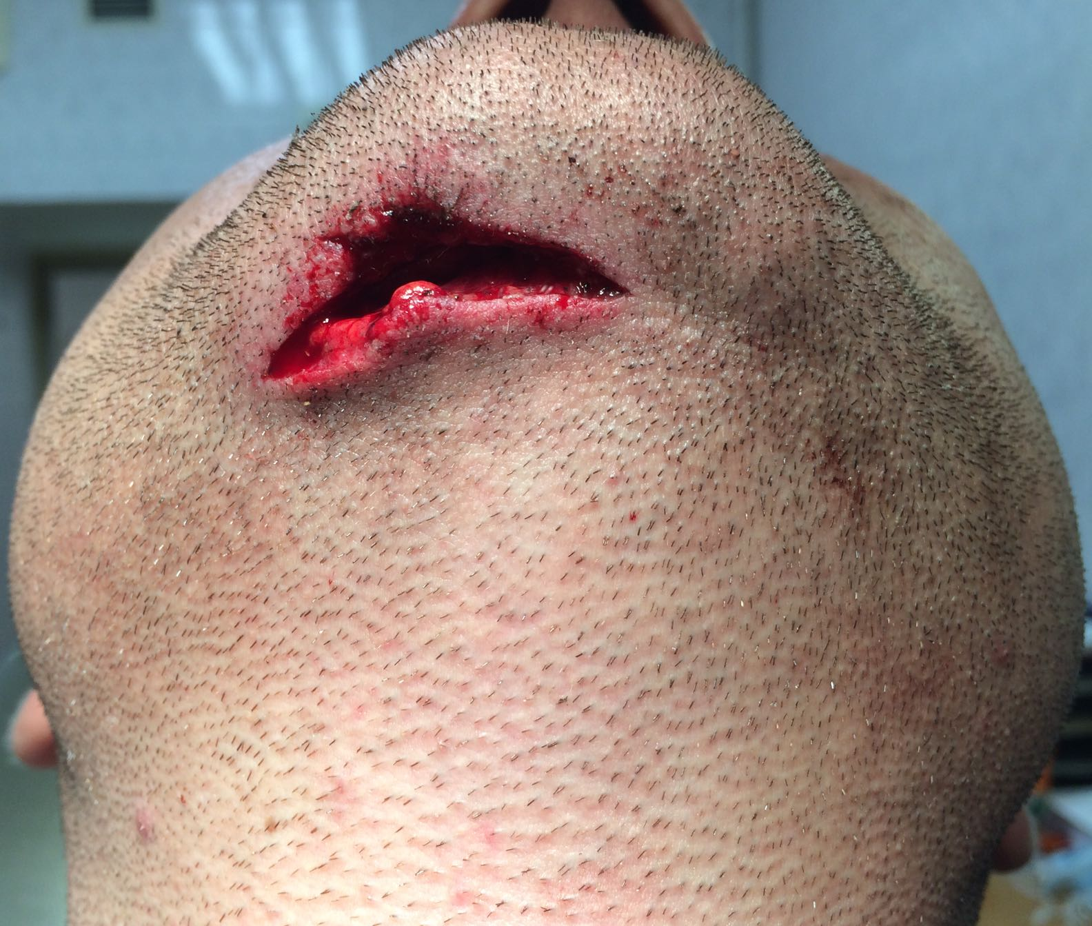contused wound of chin