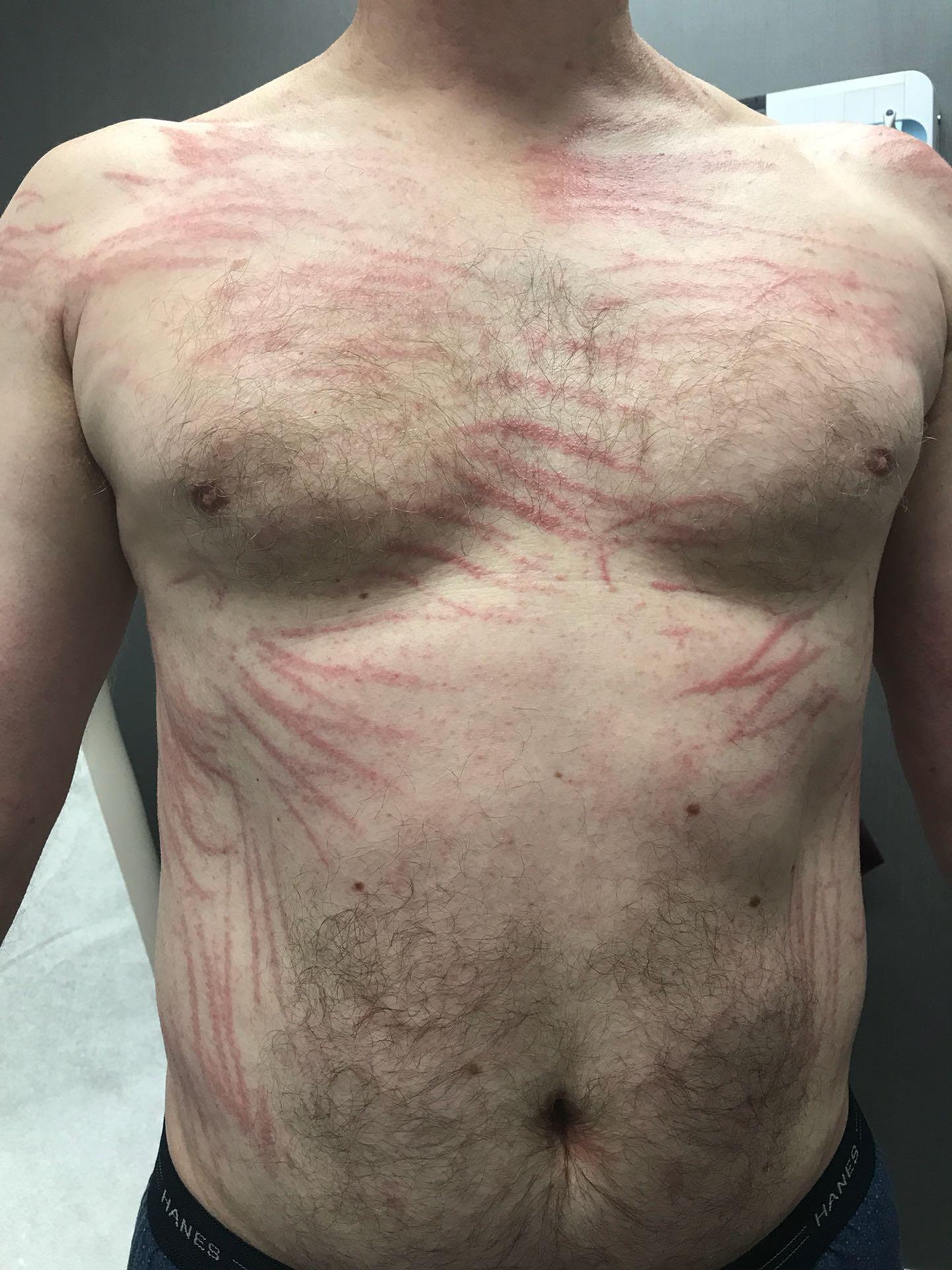 Shiitake dermatitis